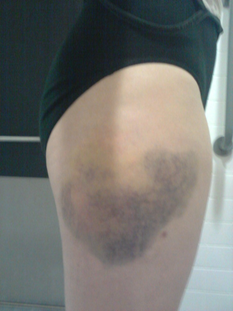 Does kinesio tape work on a bruise? (3/6)