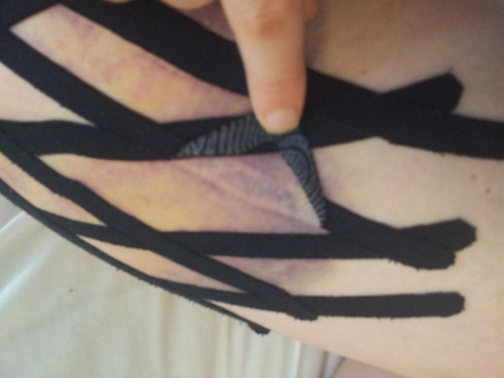 Does kinesio tape work on a bruise? (5/6)