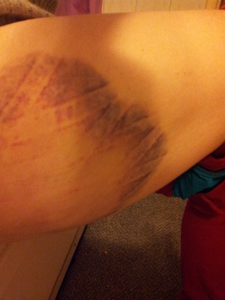 Does kinesio tape work on a bruise? (6/6)