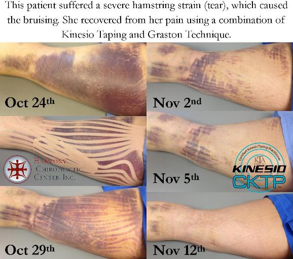 Does kinesio tape work on a bruise? (2/6)