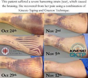 KT-Hamstring-Bruise-med